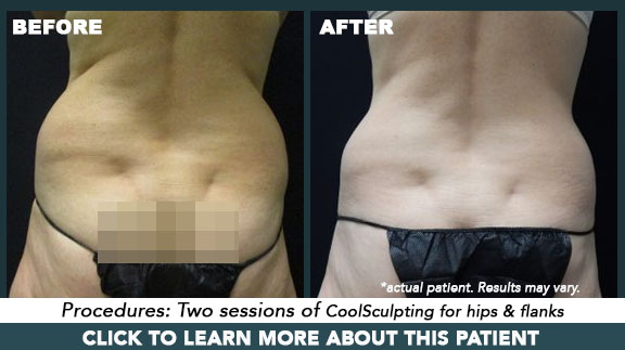 Coolsculpting in Portland, OR