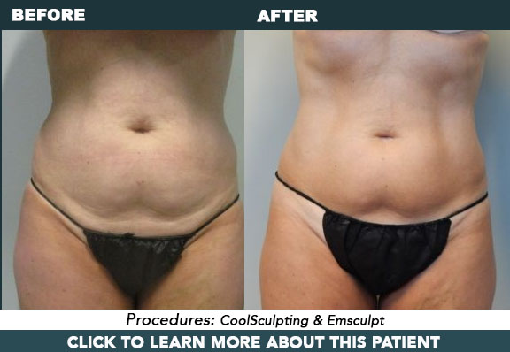 CoolSculpting and Emsculpt for inner thighs, bra-roll, and abdomen