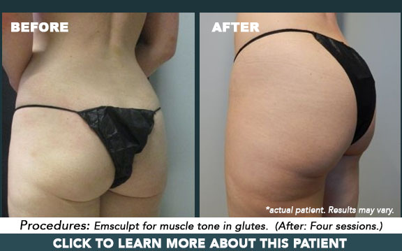 Emsculpt for butt augmentation & tone, in Portland, OR